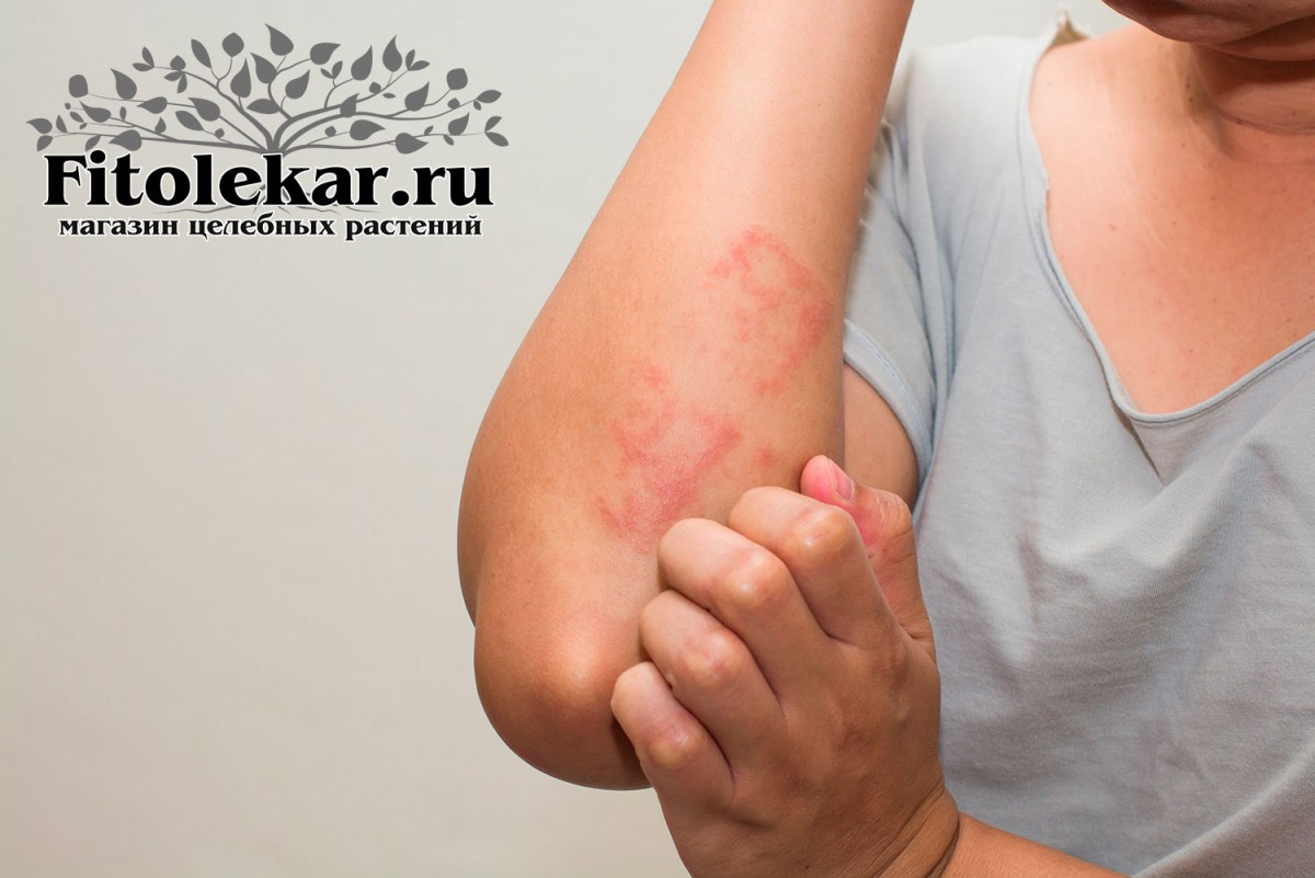 лечение дерматита, травы при дерматите, сборы трав при дерматите, мазь от дерматита.