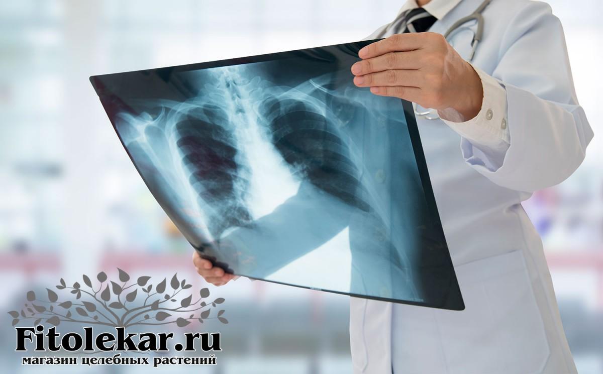 лечение туберкулеза, травы от туберкулеза, настойки от туберкулеза легких