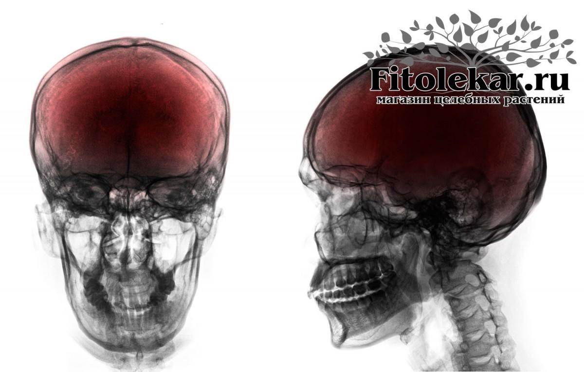 лечение черепно-мозговой травмы, травы при черепно-мозговой травме